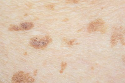 Illustration of Why Do Brown Spots Appear On The Breast, Scaly And Dry?