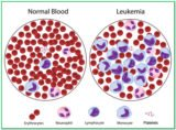 Can Treat Blood Cancer Or Leukemia With Herbs?