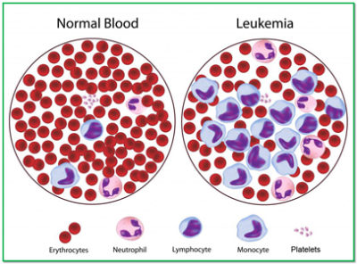 Illustration of Can Treat Blood Cancer Or Leukemia With Herbs?