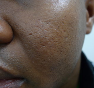 Illustration of Dark Skin Problems From Acne Scars.?