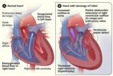 Treatment In Patients With Tetralogy Of Fallot.?