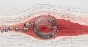 Illustration of Air Bubbles Enter The Blood Vessels Through An IV.?