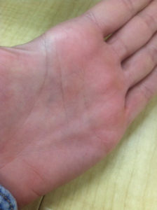 Illustration of Pain And Small Bumps On The Left Hand Little Finger.?