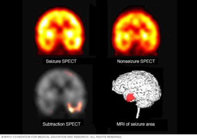 Illustration of Frequent Seizures But Good CT Scan Results.?