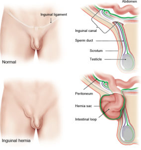 Illustration of Pain In The Right Groin Gap At 9 Months Of Pregnancy.?