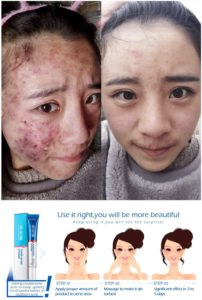 Illustration of Skin Care For Facial Acne.?