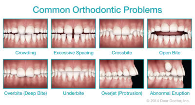 Illustration of How To Overcome The Front Teeth Which Are Spaced?