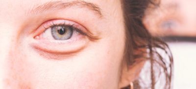 Illustration of Is It Normal For Reddish Eye Bags In A 7 Month Old Child?