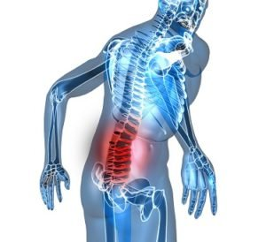 Illustration of Back Pain After An Accident 1 Year Ago.?