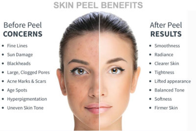 Illustration of Skin Peeling And Red Post Chemical Peeling?