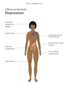 Illustration of The Relationship Between Depression And Weight Loss.?