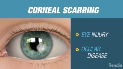 Illustration of How To Get Rid Of Scars In The Cornea Of the Eye?