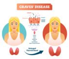 Symptoms And Treatment For Hypothyroid Sufferers?