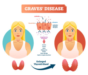 Illustration of Symptoms And Treatment For Hypothyroid Sufferers?
