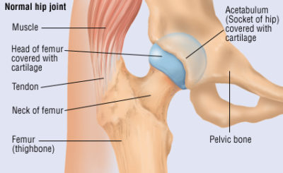 Illustration of Right Pelvic Bone Dislocation After An Accident?