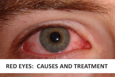 Illustration of Causes And Treat Red Eyes?
