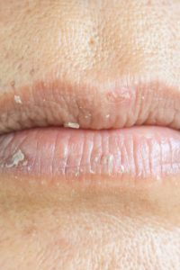 Illustration of Lips That Are Very Dry And Look Like Blisters?