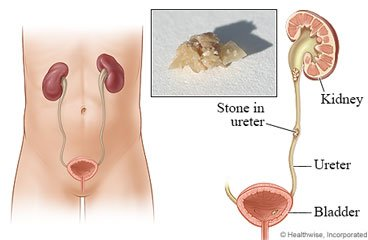 Illustration of Swollen Face And Back Pain After Kidney Stone Surgery?