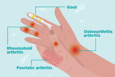 Illustration of Right Hand Joint Pain.?