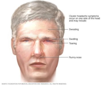 Illustration of Swelling On The Head Of The Right Edge Of The Ear After An Accident.?