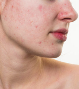 Illustration of Red Red On The Face Becomes Pimples.?