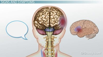 Illustration of Causes Of Blood Clots In The Brain.?