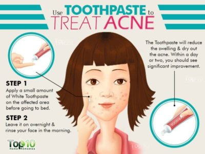 Illustration of Is It True That Toothpaste Can Treat Acne?