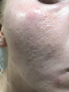 Illustration of Blackheads Appear All Over The Face.?