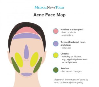 Illustration of Causes Of Acne.?