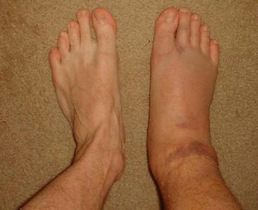 Illustration of Swelling Due To Sprains.?