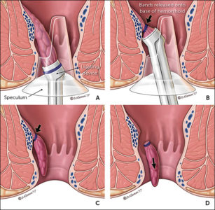 Illustration of Bleeding During A Postoperative Use Of Anus.?