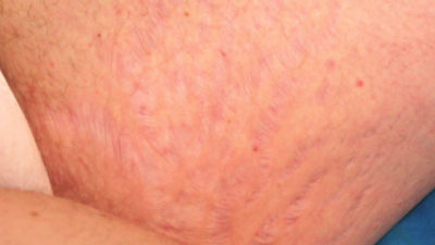 Illustration of Stretch Marks On The Breasts After Childbirth.?