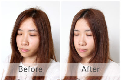 Illustration of Beruntusan And Itching After Using Skin Care.?