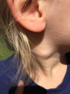 Illustration of A Lump In The Neck For 3 Years?