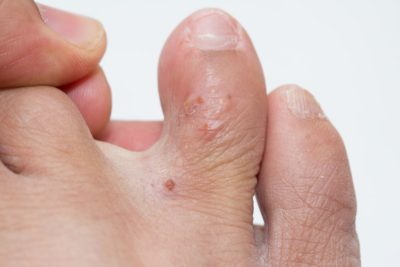 Illustration of Causes Watery Spots Itching And Blisters On The Feet, Hands, Calves And Arms?
