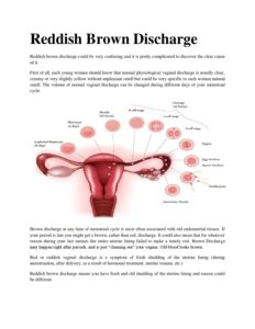 Illustration of The Cause Of Late Menstruation And Often Vaginal Discharge?
