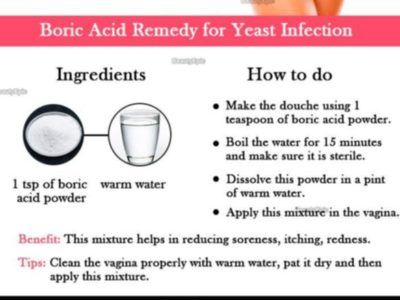 Illustration of Side Effects After Using A Yeast Infection Drug?