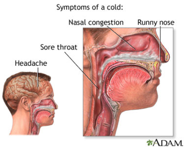 Illustration of Nasal Congestion And Phlegm In The Throat To Shortness Of Breath?