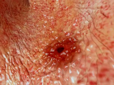 Illustration of Treatment Of Wounds In The Stomach In People With Stomach Acid?