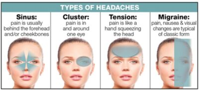 Illustration of The Cause Of Headaches Does Not Go Away.?