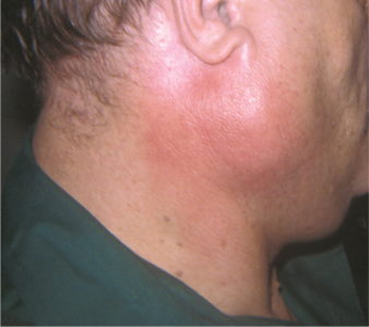 Illustration of Swollen Cheeks Due To Salivary Glands.?