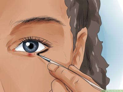 Illustration of Bintitan That Hardens And Does Not Heal.?
