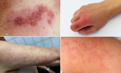 Illustration of Red Spots On The Skin But Only For A Moment.?