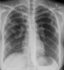 Illustration of Can Bilateral Active Pulmonary TB Be Cured?