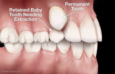 Illustration of Do You Need To Pull Teeth On The Growth Of Teeth That Shake.?