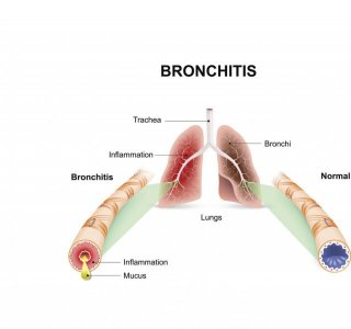 Illustration of Often Feel Stuffy With A History Of Bronchitis.?