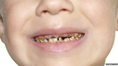 Illustration of Tooth Extraction In Children Aged 4 Years.?