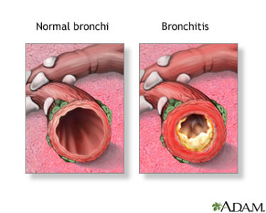 Illustration of Cough In Bronchitis?