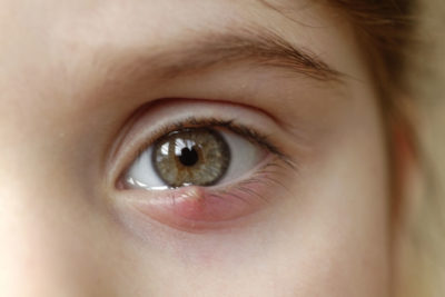 Illustration of How To Deal With Eyes Like A Pimple That Has Not Healed For Three Days?