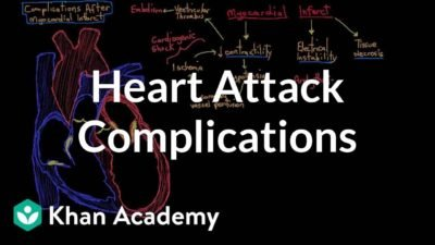 Illustration of Why Does Myocardial Infarction Cause Complications Of Dysrhythmia?